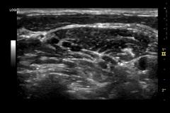 Nervio-del-plexo-braquial