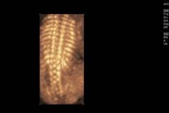 Espina-fetal