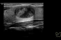 Masa-tiroidea