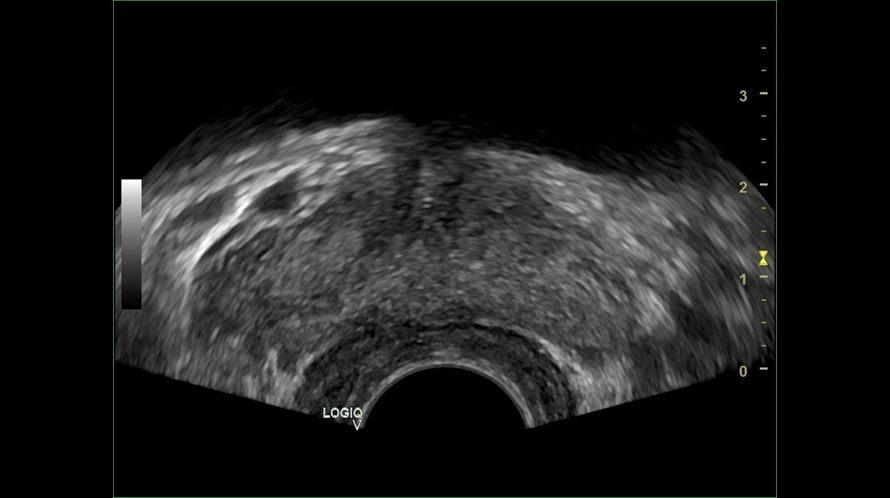 2_Próstata-vista-transversal
