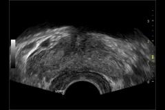 Próstata-vista-transversal