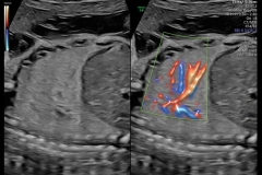 Perfusion-pulmonar-vista-con-Radiantflow
