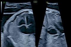 Omnivista-con-multiples-lineas-aplicada-a-feto-de-12-semanas